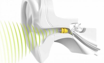 Audífonos para sordos
